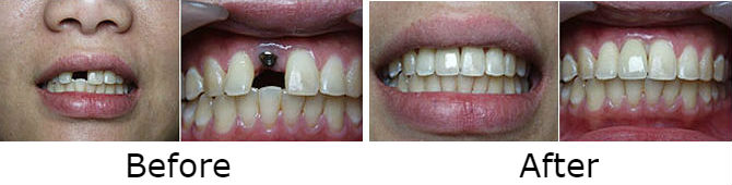 Anterior Single Tooth Implant with Porcelain Crown
