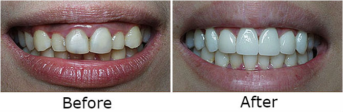 Veneer and gum recontouring