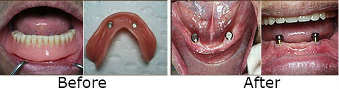 Implanted Supported Removable Lower Denture