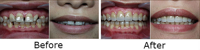 Combined Porcelain Veneers with Orthodontics on tectracycline stained teeth; to improve the natural