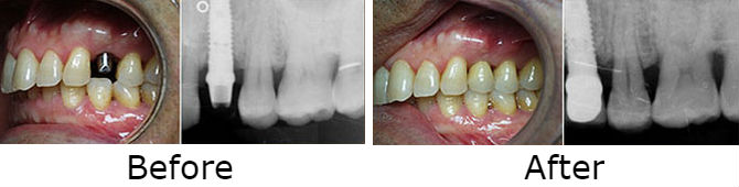 Single tooth dental implant to replace the missing premolar tooth in the upper jaw